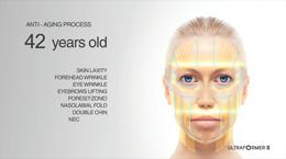 Ultraformer - video z ošetření